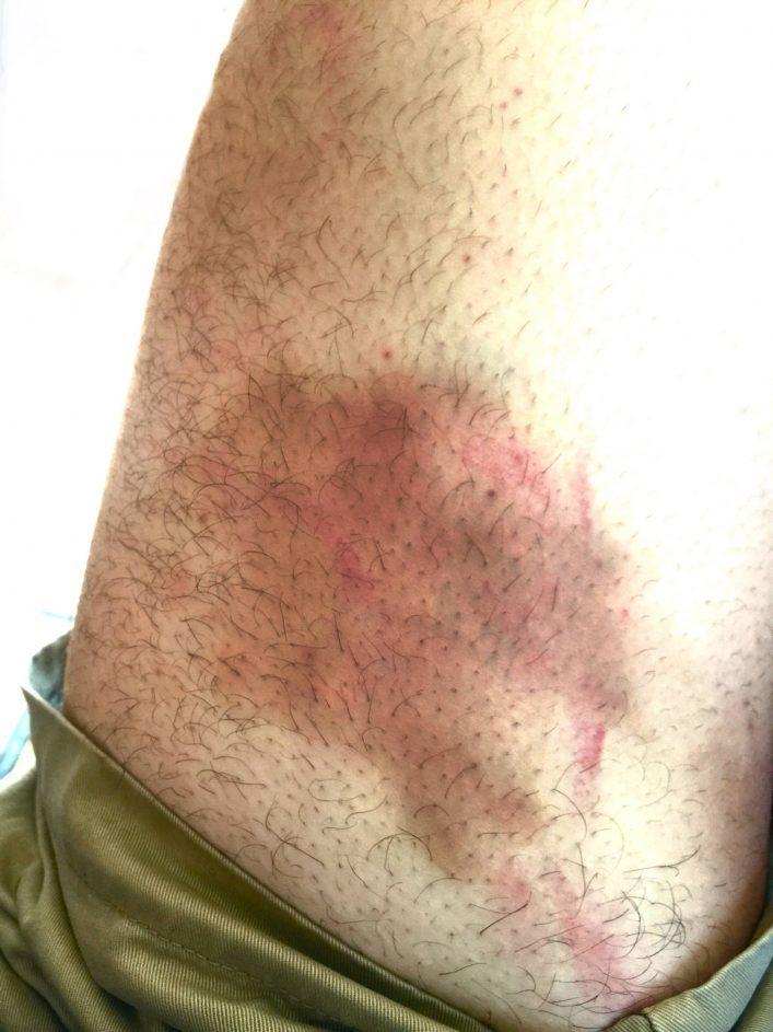 Lacrosse Goalie Bruise 3
